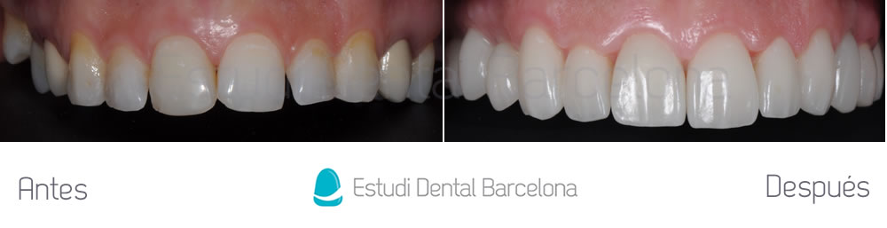 carillas-dentales-implantes-y-invisalign-antes-y-despues-arcada-superior